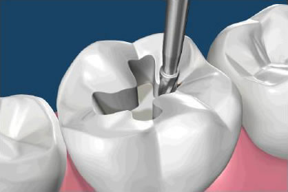 Restore a Damage Tooth To Its Healthy Shape